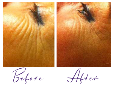 Exilis Laser Before and After