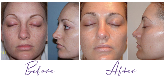 What Is Photofacial / Intense Pulsed Light?