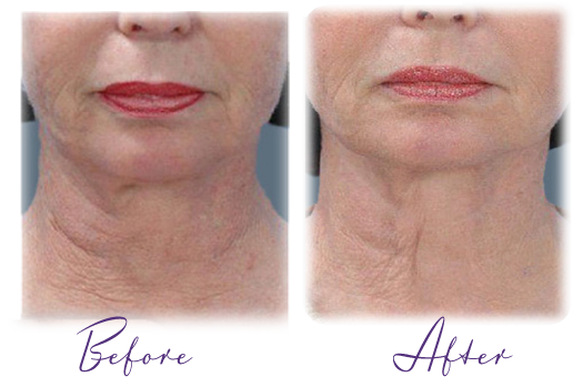 laser treatment for neck tightening